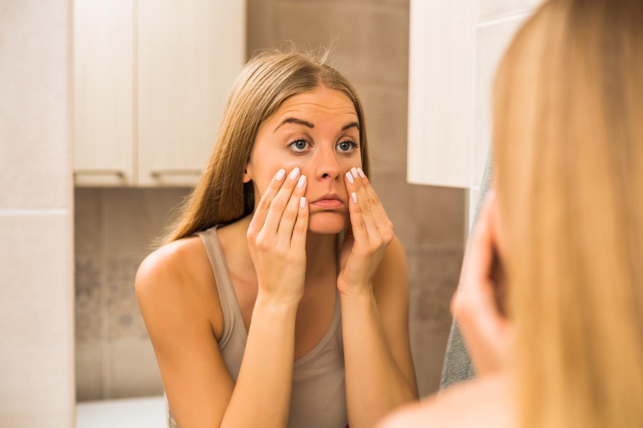 Por que as olheiras escuras surgem e como tratá-las?