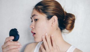 Aprenda 5 dicas infalíveis de cuidados com a pele oleosa
